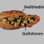 Got Gallstones?  PAIN!! But we can still get you life insurance - ask us today!