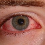 We've all had Pink Eye before. Does this prevent you from getting life insurance? Absolutely not!