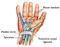 Drawing of Carpel Tunnel Release