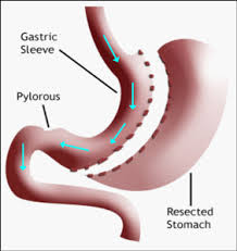 Image of the area for a Gastrectomy