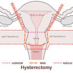 Full hysterectomy