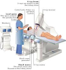People and procedures for a Lithotripsy