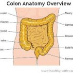 Colectomy image